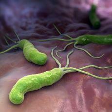 Ülsere Neden Olan Bakteri Helicobacter Pylori'nin Keşfedilme Hikayesi