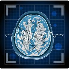 Detayları İle Epilepsi Hastalığı ve Tarihte Bu Hastalığı Yaşamış Ünlülerin Ağzından Hissettikleri Şeyler