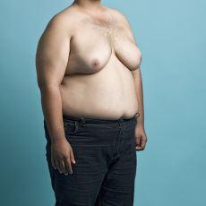 Erkeklerde Anormal Derecede Göğüs Büyümesi: Jinekomasti Hastalığı