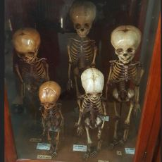 Bebeklerin ve Küçük Çocukların Cansız Bedenlerinin Sergilendiği İçinizin Buz Kesmesine Neden Olabilecek Tayland'daki Ölüm Müzesi