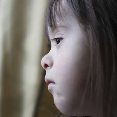 Çevremizde Neden Hiç Yaşını Başını Almış Zihinsel Engelli Birini Görmüyoruz?