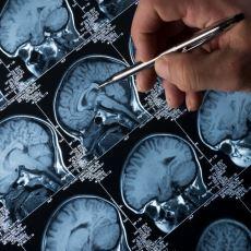Epilepsi Nöbeti Geçirmekte Olan Birine Nasıl Davranmak Gerekir?