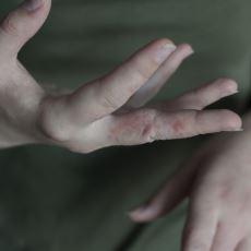 Salgın Haberleriyle Duyduğumuz Uyuz Hastalığı Nedir, Belirtileri Nelerdir?