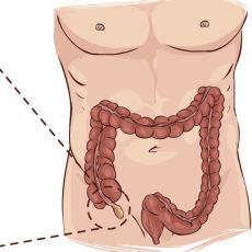 Evrimsel Süreçte Körelmiş İnsan Organları