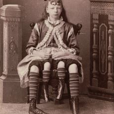 Dört Bacak ve İki Rahimle Doğup, Yaşayıp, Ölen Kadın: Josephine Myrtle Corbin