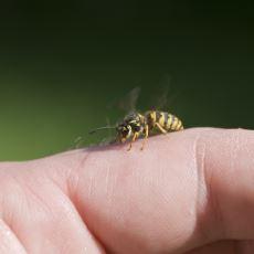 Arı Sokması Durumunda Ne Yapmalı?