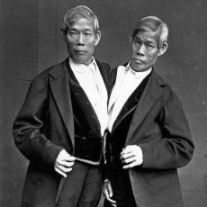 Siyam İkizleri Kavramına Sebep Olmuş Tarihin En Ünlü Siyam İkizleri Chang ve Eng'in İnanılmaz Yaşam Öyküsü