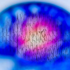 Tarihte Pek Çok Dehada Görülmüş Bir Hastalık: Temporal Lob Epilepsisi