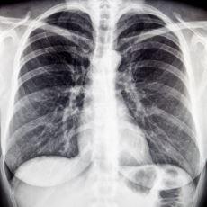 Gözle Görülemeyen Noktaların Bir Nevi Fotoğrafını Çeken Röntgen Teknolojisi Nasıl Çalışır?