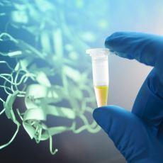 İnsan Vücuduna Ufuk Katlayıcı Pek Çok Etkisi Olan Olay: Amino Asitlerin Katabolizması