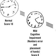 Alzheimer ve Bunaklığın Tespit Edilmesi İçin Saat Çizdirilerek Yapılan Test
