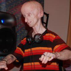 10 Yaşındaki Çocuğun 70 Görünmesine Neden Olan Nadir Hastalık: Progeria