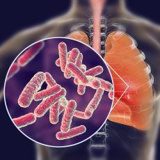 Tüberküloz (Verem Hastalığı) Hakkında Bilinmesi Gereken Önemli Hususlar