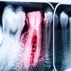 Tarım ve Sanayi Devrimi, İnsanoğlunun Diş Sağlığını Nasıl Geri Dönülemez Biçimde Etkiledi?