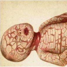 Mutasyon Sonucu Oluşmuş, Dünyanın En Korkunç Hastalıkları