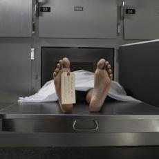 Ölüm Sonrasında Vücudun Kaskatı Kesilme Hali: Rigor Mortis
