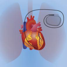 Kalp Pilinin Çalışma Şekli ve Dünden Bugüne Tarihi