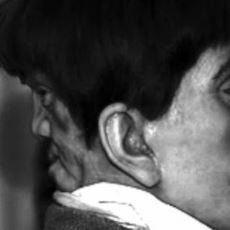 Kafasının Arkasında Başka Bir Yüzle Doğduğu İddia Edilen Adam: Edward Mordrake