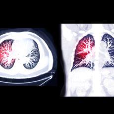 Ani Ölümlere Neden Olan Sessiz Katil: Akciğer Embolisi Hakkında Her Şey