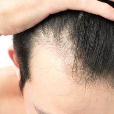 Saç Dökülmesini Durdurmak İsteyenlere İlaç Gibi Gelecek Bir Karışım Tarifi