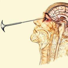 Psikiyatrik Hastaların Beyinlerinin Bir Bölümünün Kesilerek Tedavi Olmasını Sağlayan Yöntem: Lobotomi