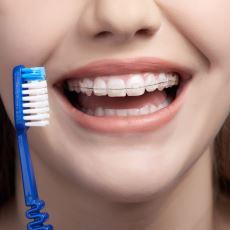 Diş Teli Kullanan Kişiler İçin Detaylı Bir Ağız Bakım Rehberi