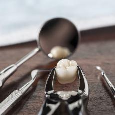 20 Yaş Dişinin Çekimi Sonrasında Dikkat Edilmesi Gereken Şeyler