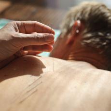 Bir Akupunktur Muayenehanesinde Yaşanabilecek En Garip ve Komik Olaylardan Biri
