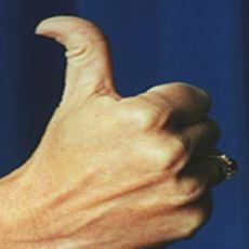 Otostopçu Parmağı Denen Şey Genetik Bir Durum mudur?