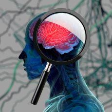 Alzheimer'dan Sonra En Yaygın İkinci Demans Türü: Lewy Cisimcikli Demans