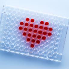HIV ve Birçok Kan Hastalığının Teşhisi İçin Yapılan Eliza Tesi Nedir?