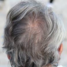 Saçlar Neden Beyazlar?