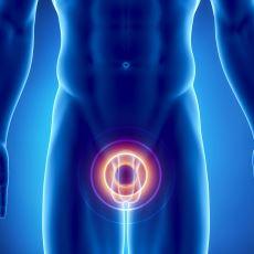 Erkeklerin %15'inde Görülen Varikosel Nedir ve Nasıl Tedavi Edilir?