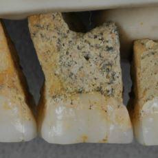 Yeni Keşfedilen ve Çağdaşlarından Farklı Özellikler Gösteren İnsan Türü: Homo Luzonensis