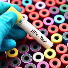 Aktif Cinsel Hayata Sahip İnsanlara Bulaşma Olasılığı Yüksek Olan İnsan Papilloma Virüsü Nedir?