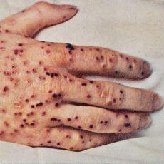 Dünyada İnsanlığa Boyun Eğerek Yok Olmuş Birkaç Hastalıktan Biri: Çiçek Hastalığı