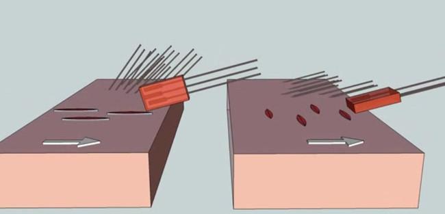 Operasyon Geçirmiş Birinin Kaleminden: Saç Ektirmeye Dair Bilmeniz Gereken Her Şey
